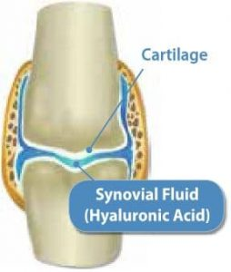 Joint diagram with synovial fluid (hyaluronic acid) – Hyalogic